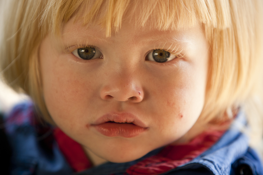 Albinism is usually passed either from one unaffected parent or from both unaffected parents to a child. Neither Jajang's mother nor father has the condition, but the genetic mutation has been present in their families. (JG Photo/Yudha Baskoro)