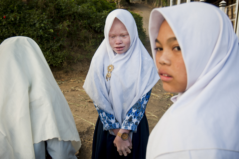 Dewi Resmana, 13, is immediately noticeable among her school friends, but not to them. Everyone in the village is used to the sight of their white-skinned kith and kin. (JG Photo/Yudha Baskoro)