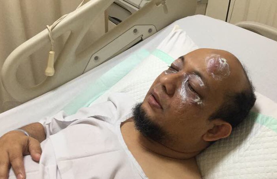 KPK Investigator Novel Suffers Burns to His Face After Acid Attack ...