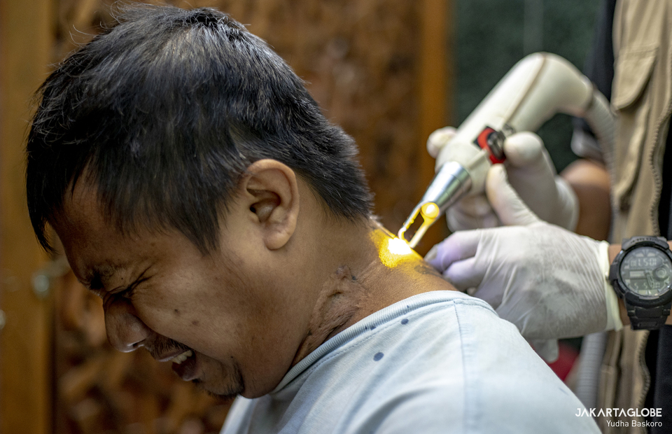 A man reacts as a health worker removes his tattoo at the Assahara Mosque inside the West Jakarta Mayor