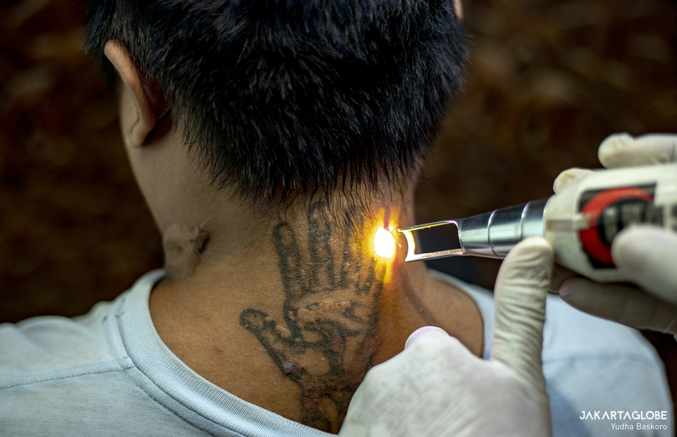 A man removes his tattoo at the Assahara Mosque inside the West Jakarta Mayor